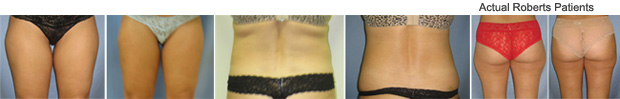 Slim lipo Before and After Richardson, TX