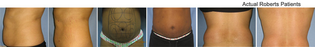 Slimlipo Before and After Dallas, Fort Worth and Richardson, TX