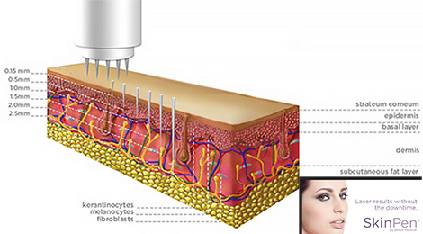 Dermis Diagram Roberts Cosmetic Surgery