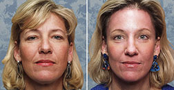 Before & After of Browlift (Forehead Lift) Surgery