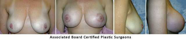 Breast Lift Dallas Fort Worth Metroplex Before & After Pictures