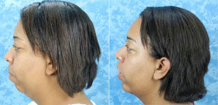 Before & After photos Mentoplasty Chin Implant Surgery