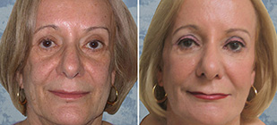 LiquidFaceLift Dallas Before and After