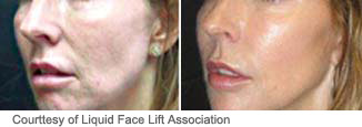 Liquid face lift plastic surgeon dallas roberts cosmetic surgery to correct a prejowl sulcus or jowled appearance dr roberts can either inject filler into the depression between the jowl and the chin to lessen the jowl ccuart Image collections