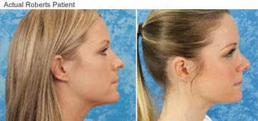 Rhinoplasty Before After Nose Reshaping Photos