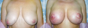 Breast Lift - 1 week