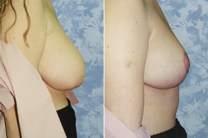 Breast Lift - Reduction - 1 week