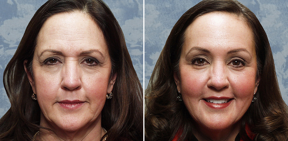Endoscopic Browlift combined with Lower Blepharoplasty, C0-2 laser around eyes & mouth