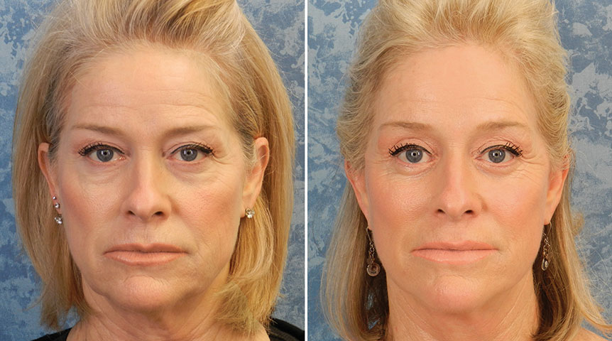 Endoscopic Browlift combined with Lower Blepharoplasty