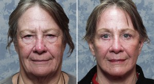 Endoscopic Browlift combined with Upper & Lower Blepharoplasty, Facelift & Facial Resurfacing