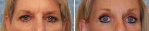 Endoscopic Browlift combined with Facelift