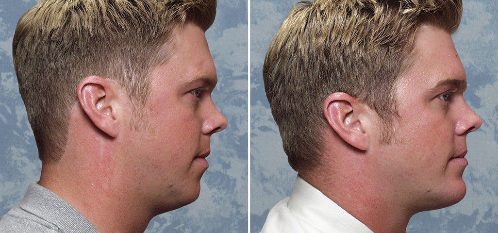 Chin Augmentation with Liposuction of Jawline