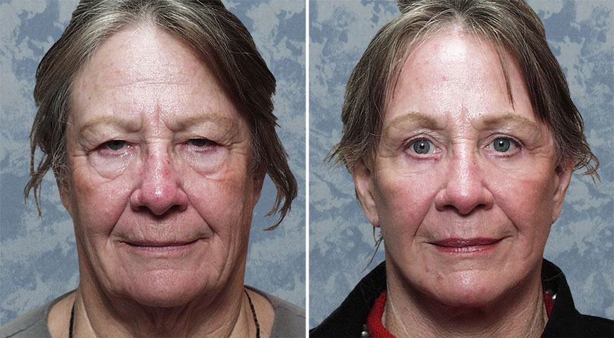 Face Lift, Endoscopic Brow Lift, Lower Bleph & Facial Resurfacing