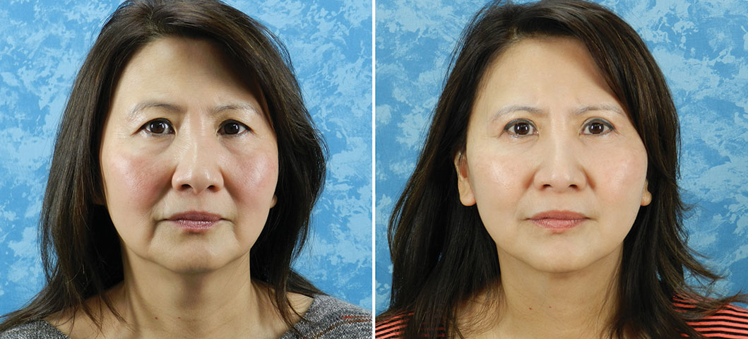 Face Lift and Upper & Lower Bleph