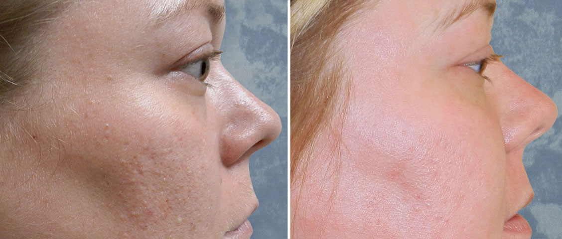Skin Resurfacing D.O.T. Co2 (1 treatment)