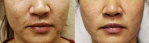 Skin Resurfacing with SkinPen