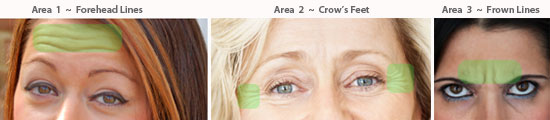 BOTOX and Dysport pricing areas for crow