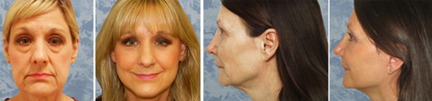 Face Lift Photo