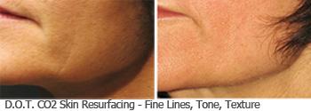 Actual Roberts D.O.T. face fine lines, tone texture patient