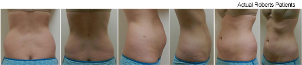 Slim lipo Before and After Dallas, Fort Worth and Richardson, TX