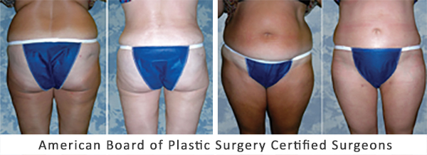 Tummy Tuck & Liposuction Before After Abdominoplasty