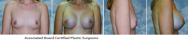 Breast Augmentation Dallas Before & After Picture