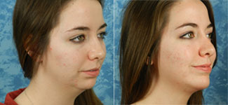 Before & After photos Chin Implant Surgery