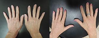 Actual Roberts Radiesse Hand Contouring Patient