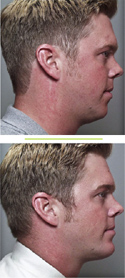 Before & After photos Chin Augmentation Surgery