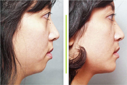 Before & After photos Mentoplasty Chin Augmentation Surgery
