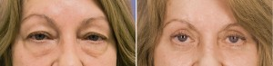 Upper & Lower Blepharoplasty