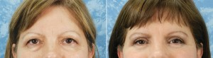 Lower Blepharoplasty & Facelift