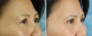 Upper & Lower Blepharoplasty & Facelift