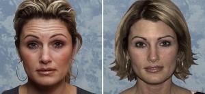Botox  - Actual Roberts' Patient