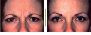 Botox  - Photo Courtesy of Allergan