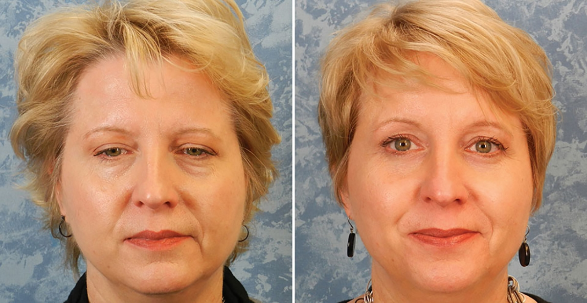 Brow Lift Before After Pictures Plastic Surgeon Dallas Roberts