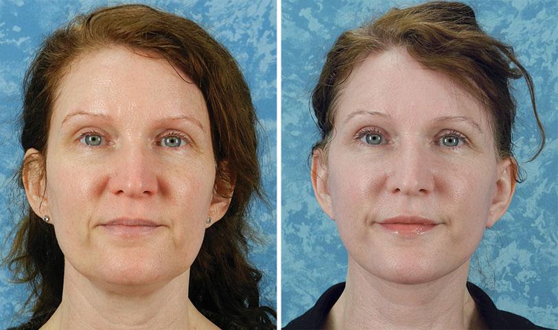 Lip Augmentation – Plastic Surgeon Dallas – Roberts Cosmetic