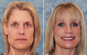 Face Lift & Brow Lift