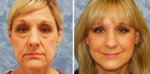 Face Lift & Lower Bleph