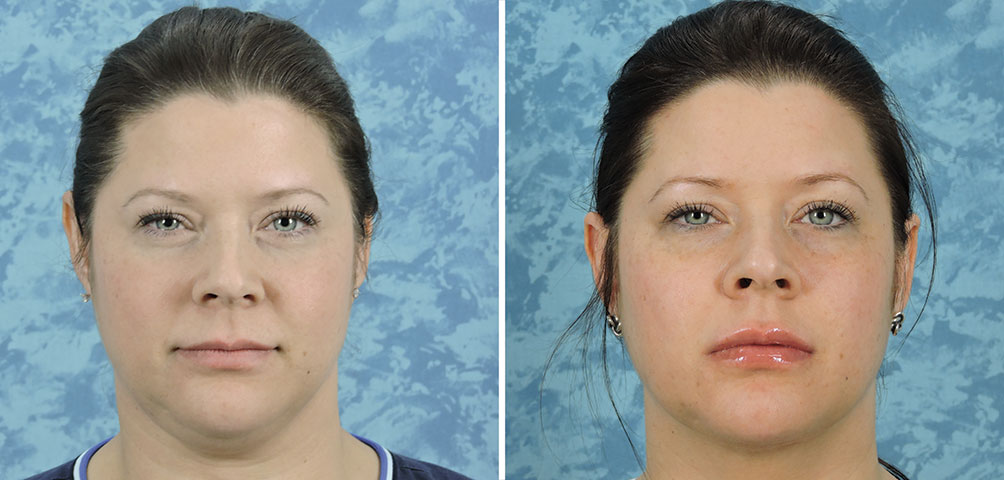 Lip Augmentation with Surgisil Permalip Implant