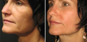 Lip Augmentation with Surgisil Permalip Implant - Rejuvena