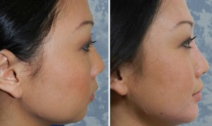 Liquid Face Lift - Chin Area Contouring