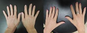 Radiesse Filler - Hands