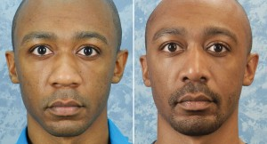 Rhinoplasty & Chin Augmentation
