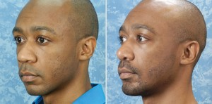 Rhinoplasty & Chin Augmentation