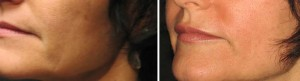 Skin Resurfacing D.O.T. Co2 & Lip Implant (1 treatment)