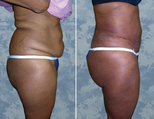 Tummy Tuck & Fat Transfer